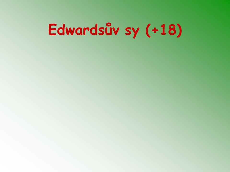 Edwardsův sy (+18)