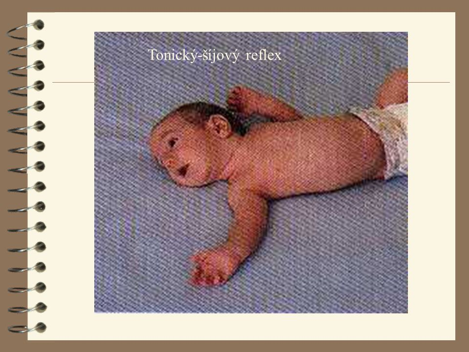 Tonický-šíjový reflex