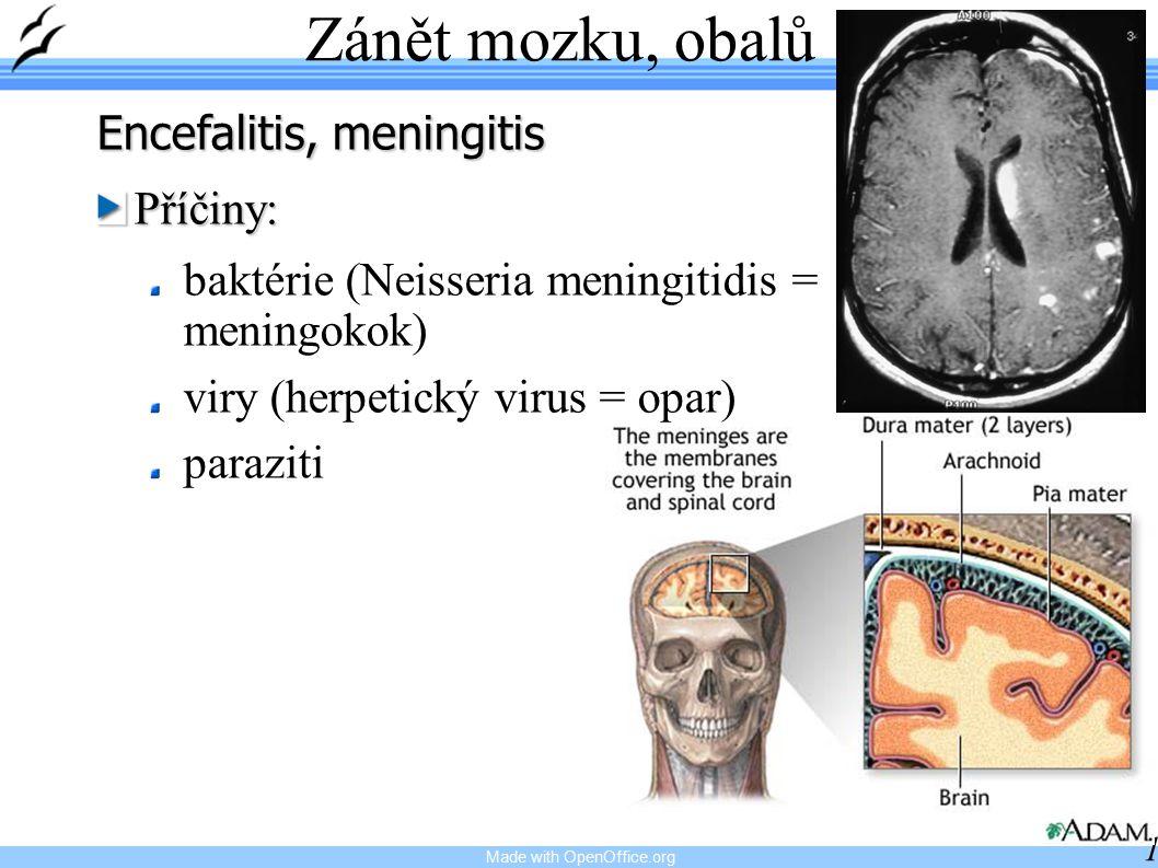 Zánět mozku, obalů Encefalitis, meningitis Příčiny: