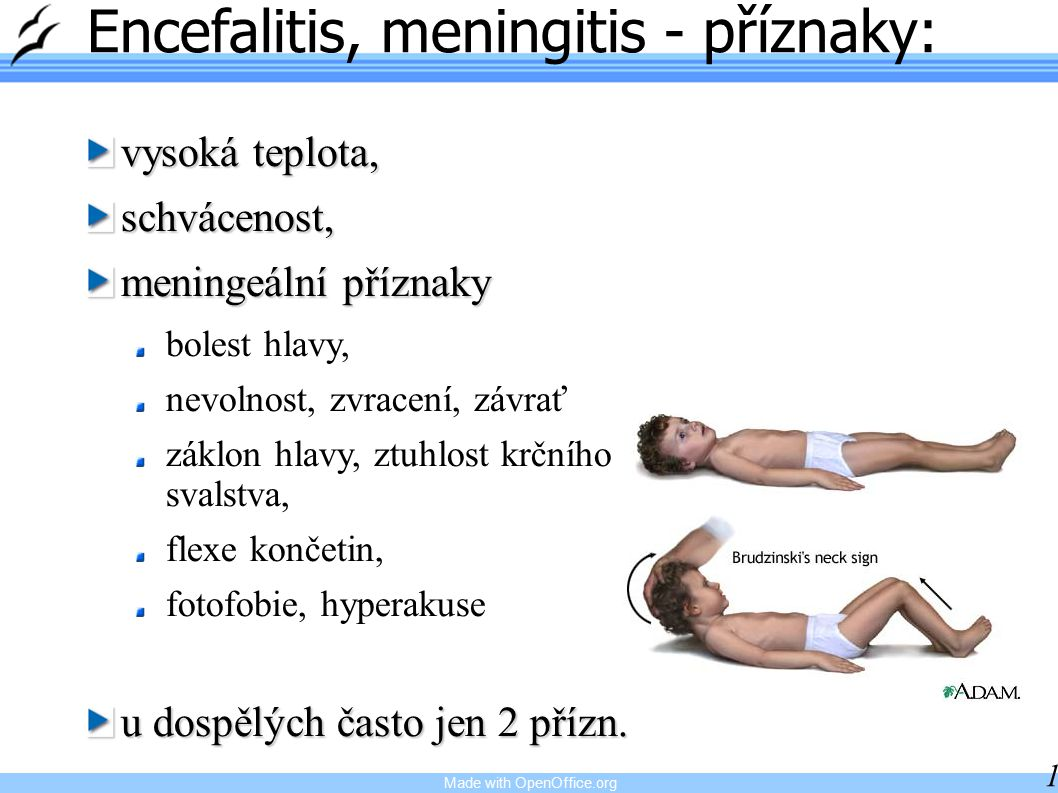 Encefalitis, meningitis - příznaky: