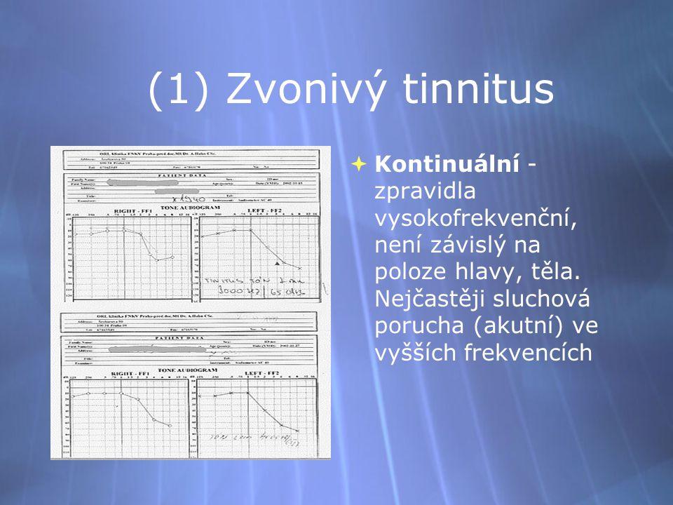 (1) Zvonivý tinnitus