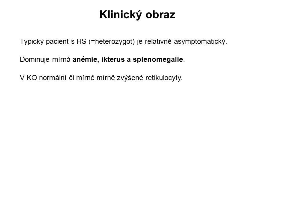 Klinický obraz Typický pacient s HS (=heterozygot) je relativně asymptomatický. Dominuje mírná anémie, ikterus a splenomegalie.