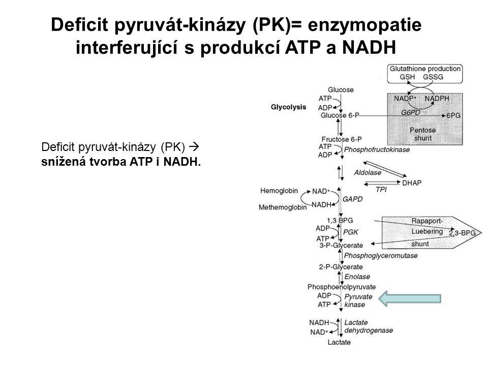Deficit pyruvát-kinázy (PK)= enzymopatie interferující s produkcí ATP a NADH