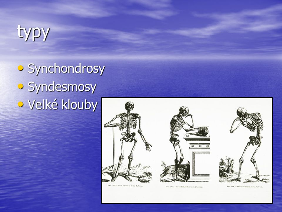 typy Synchondrosy Syndesmosy Velké klouby
