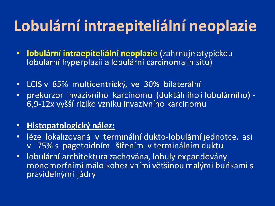 Lobulární intraepiteliální neoplazie