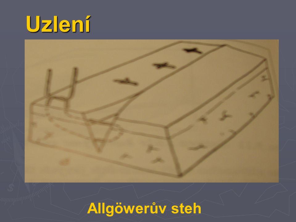 Uzlení Allgöwerův steh