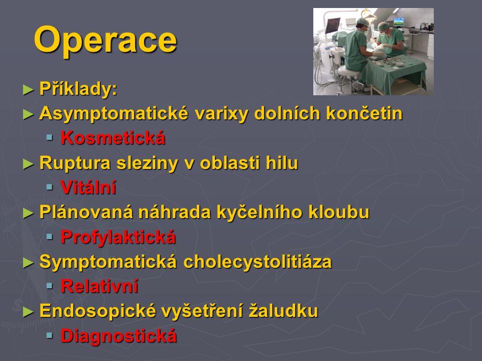 Operace Příklady: Asymptomatické varixy dolních končetin Kosmetická