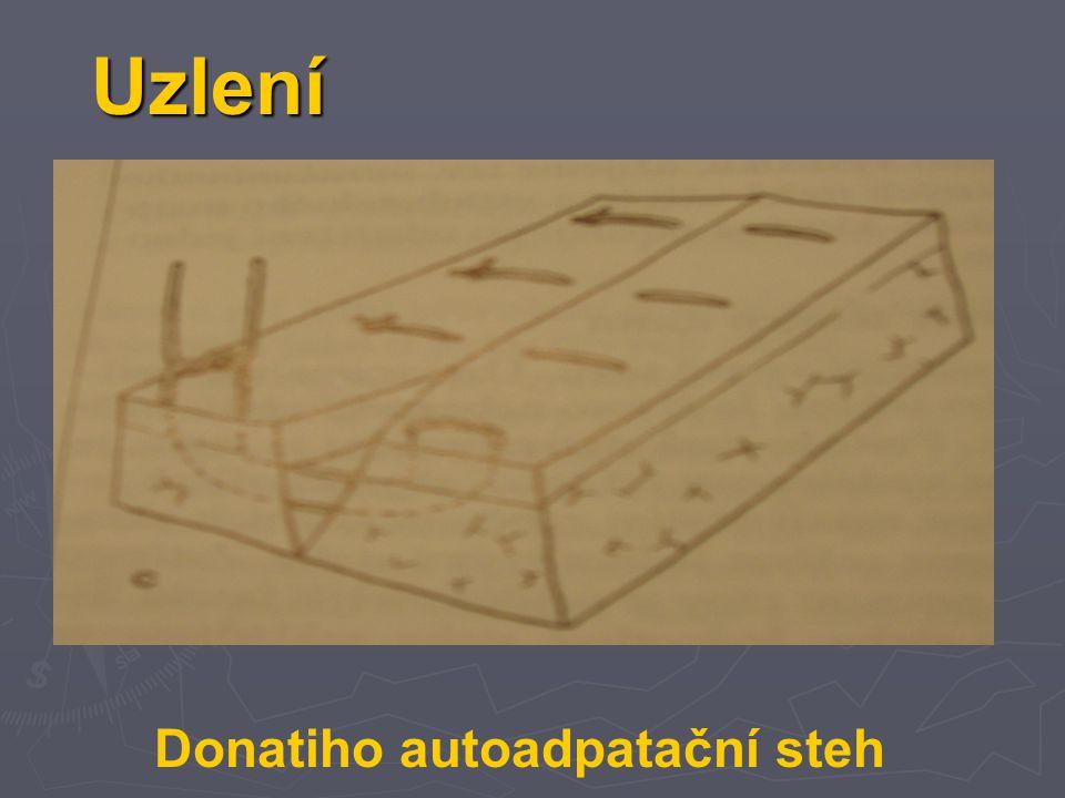 Donatiho autoadpatační steh