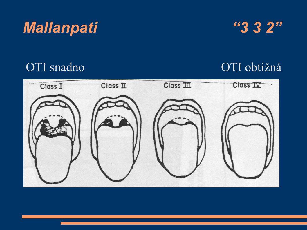 Mallanpati 3 3 2 OTI snadno OTI obtížná