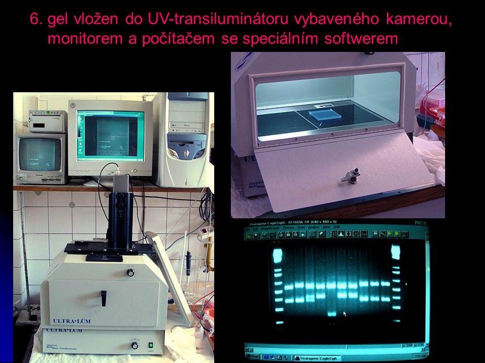 6. gel vložen do UV-transiluminátoru vybaveného kamerou,