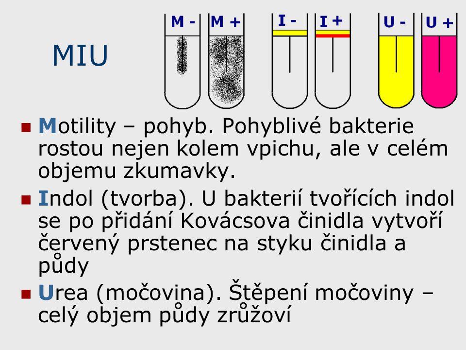 MIU Motility – pohyb. Pohyblivé bakterie rostou nejen kolem vpichu, ale v celém objemu zkumavky.