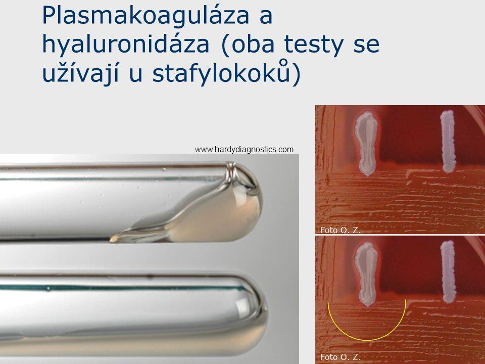 Plasmakoaguláza a hyaluronidáza (oba testy se užívají u stafylokoků)