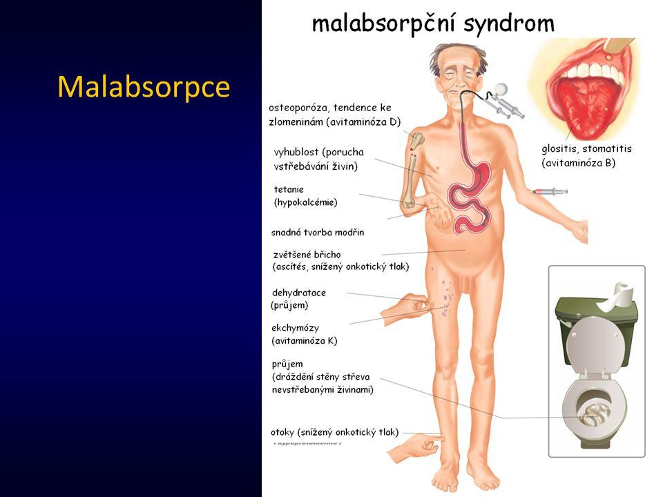Malabsorpce