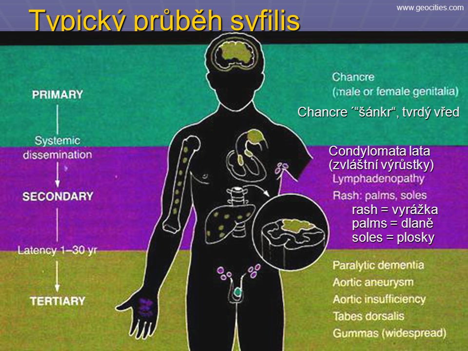 Typický průběh syfilis