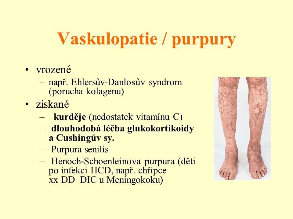 Vaskulopatie / purpury