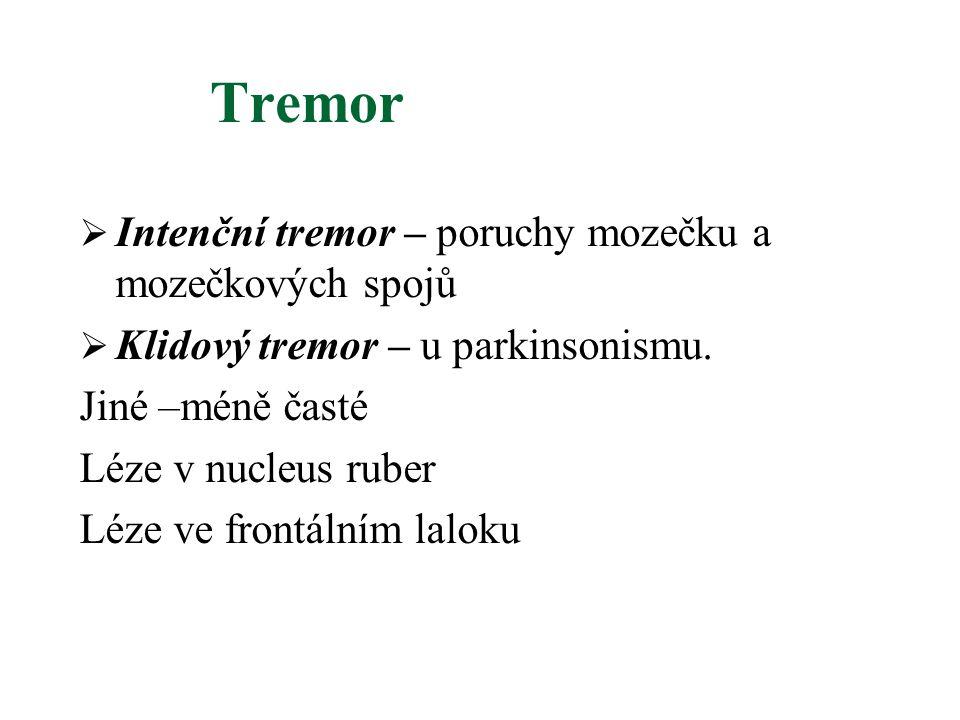 Tremor Intenční tremor – poruchy mozečku a mozečkových spojů