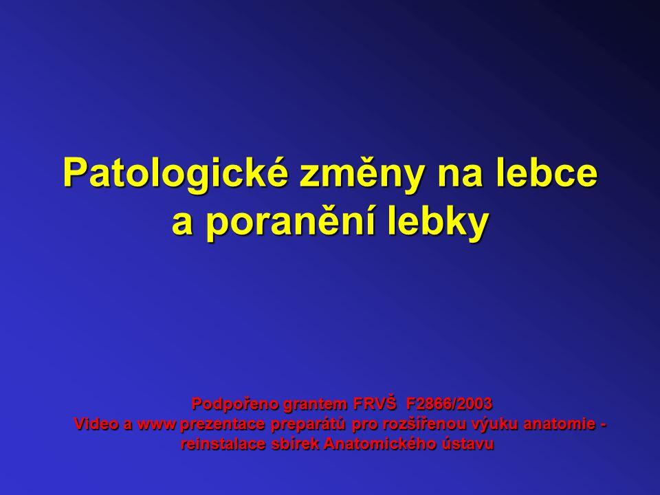 Patologické změny na lebce a poranění lebky