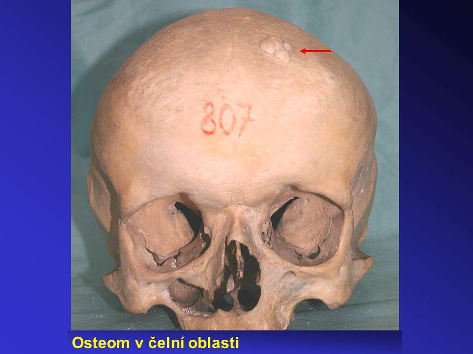 Osteom v čelní oblasti