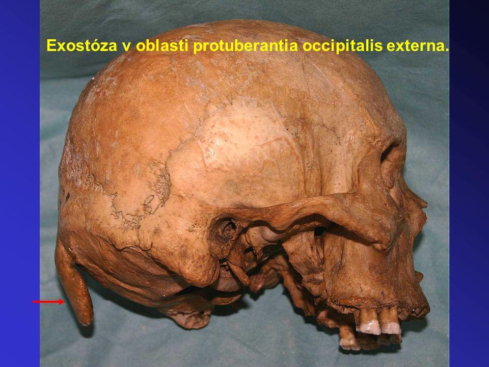 Exostóza v oblasti protuberantia occipitalis externa.