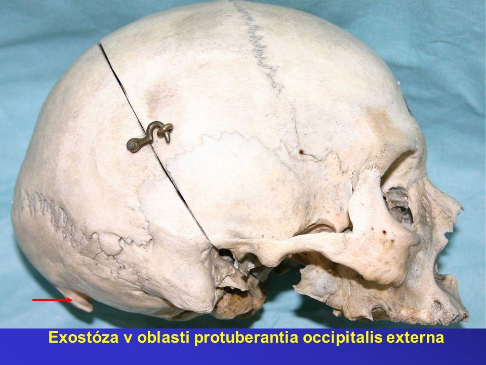 Exostóza v oblasti protuberantia occipitalis externa