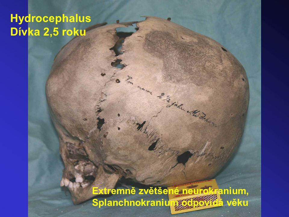Hydrocephalus Dívka 2,5 roku Extremně zvětšené neurokranium,
