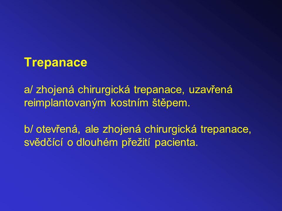 Trepanace a/ zhojená chirurgická trepanace, uzavřená reimplantovaným kostním štěpem.