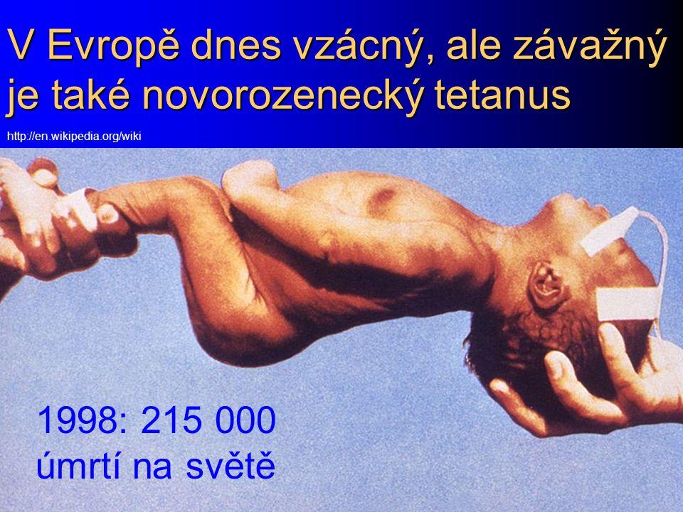 V Evropě dnes vzácný, ale závažný je také novorozenecký tetanus
