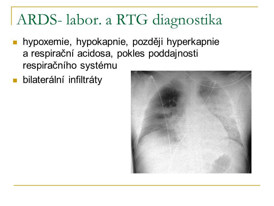 ARDS- labor. a RTG diagnostika