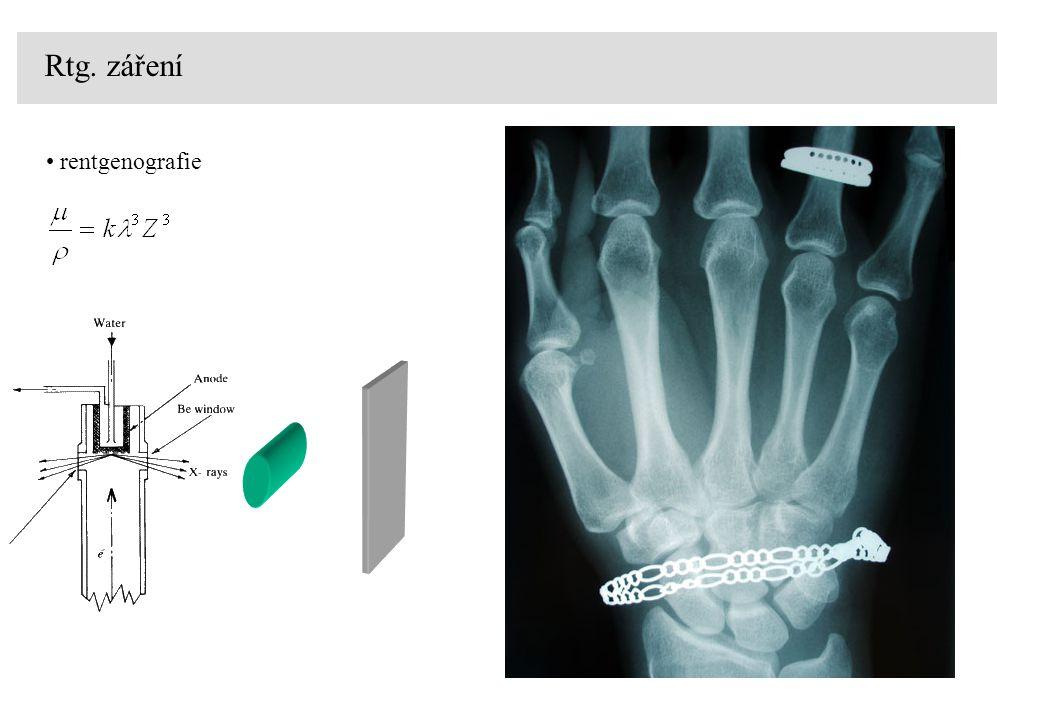 Rtg. záření rentgenografie