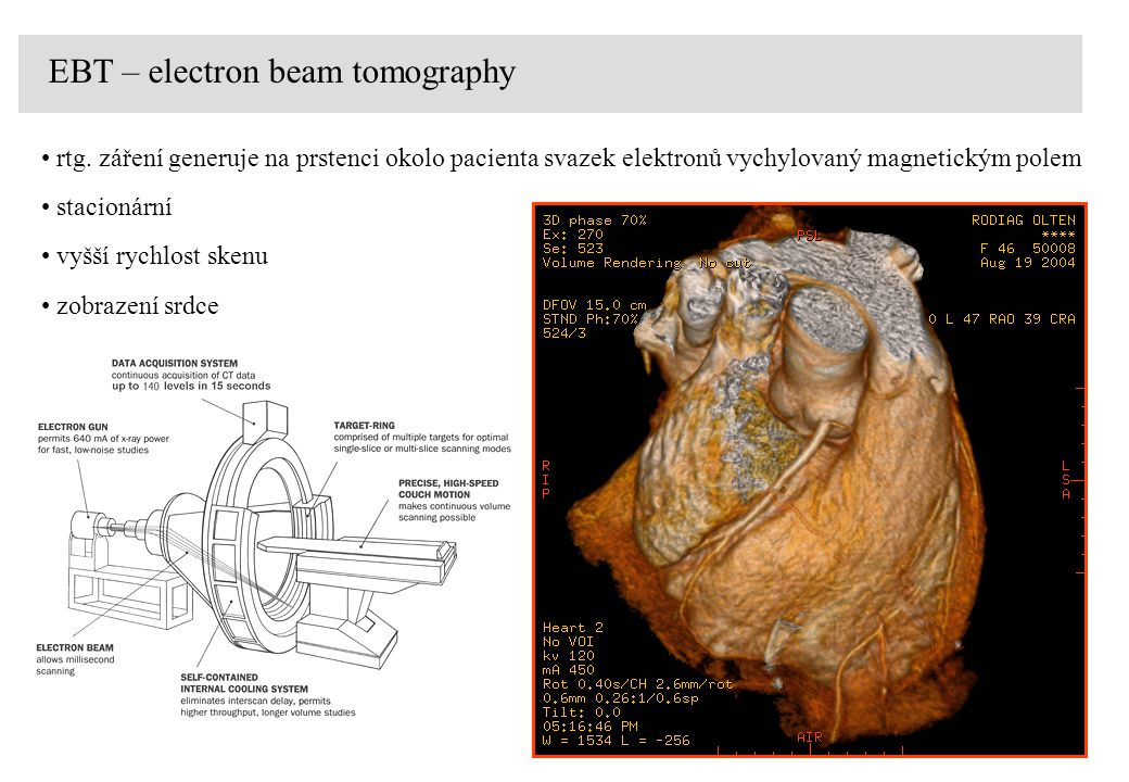 EBT – electron beam tomography