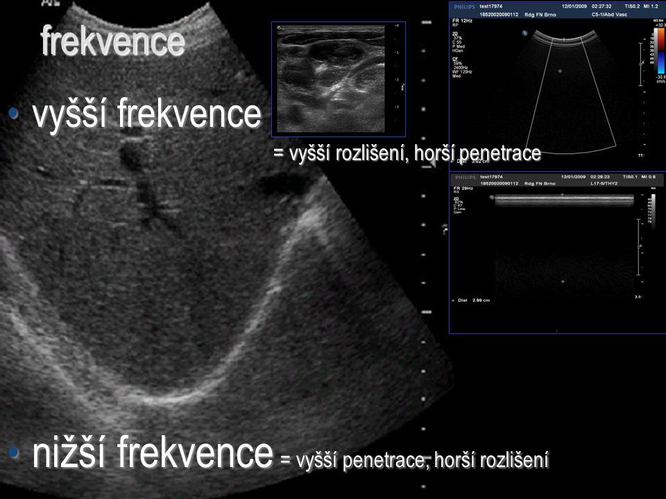 nižší frekvence = vyšší penetrace, horší rozlišení