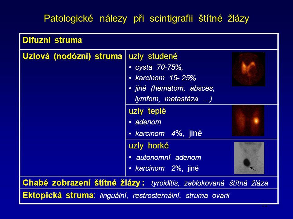 Patologické nálezy při scintigrafii štítné žlázy