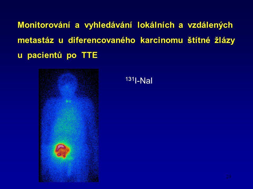 Monitorování a vyhledávání lokálních a vzdálených metastáz u diferencovaného karcinomu štítné žlázy u pacientů po TTE