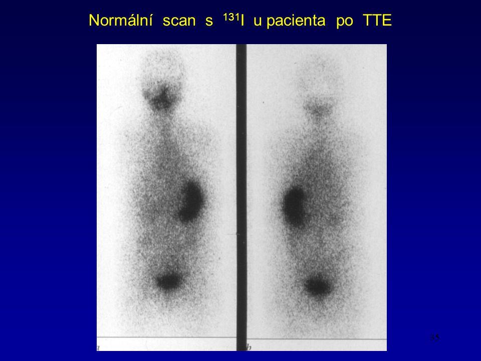 Normální scan s 131I u pacienta po TTE