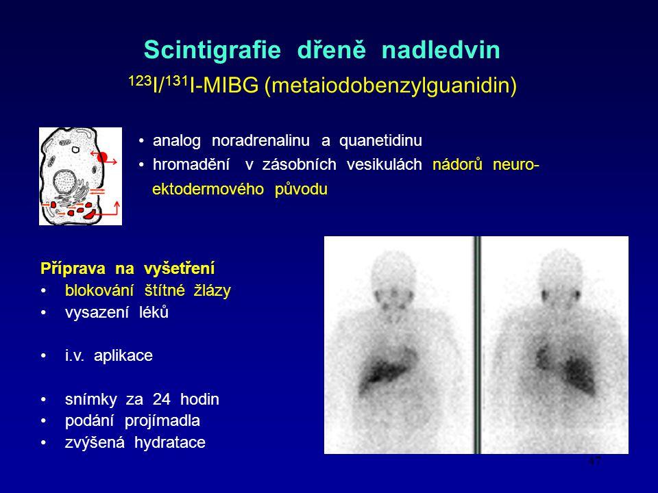 Scintigrafie dřeně nadledvin 123I/131I-MIBG (metaiodobenzylguanidin)