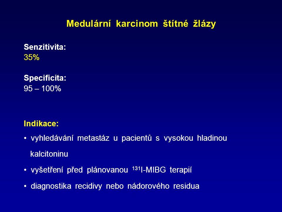 Medulární karcinom štítné žlázy