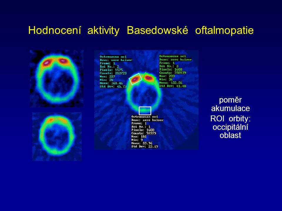 Hodnocení aktivity Basedowské oftalmopatie