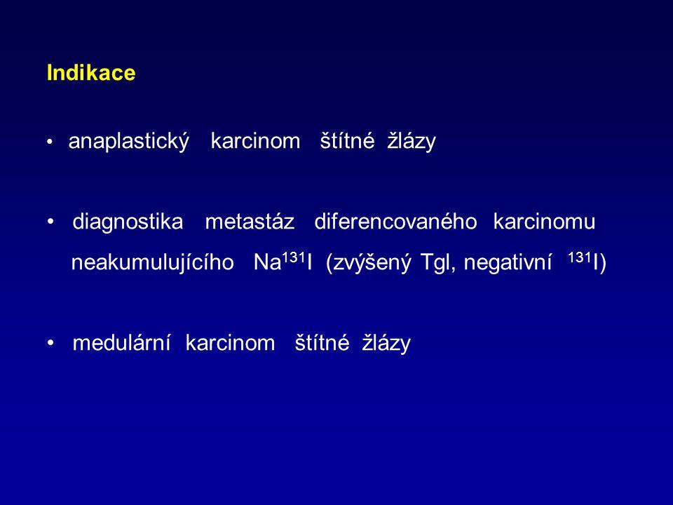 diagnostika metastáz diferencovaného karcinomu