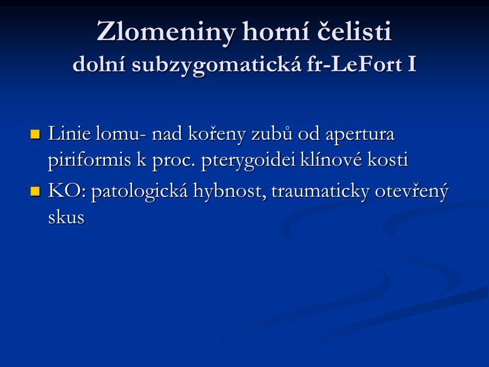 Zlomeniny horní čelisti dolní subzygomatická fr-LeFort I