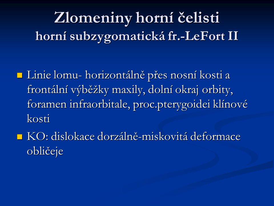 Zlomeniny horní čelisti horní subzygomatická fr.-LeFort II