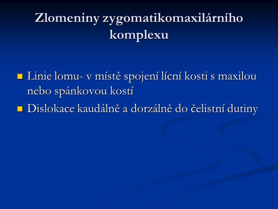 Zlomeniny zygomatikomaxilárního komplexu