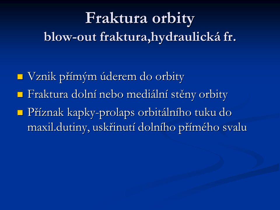 Fraktura orbity blow-out fraktura,hydraulická fr.