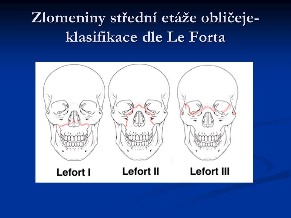 Zlomeniny střední etáže obličeje- klasifikace dle Le Forta