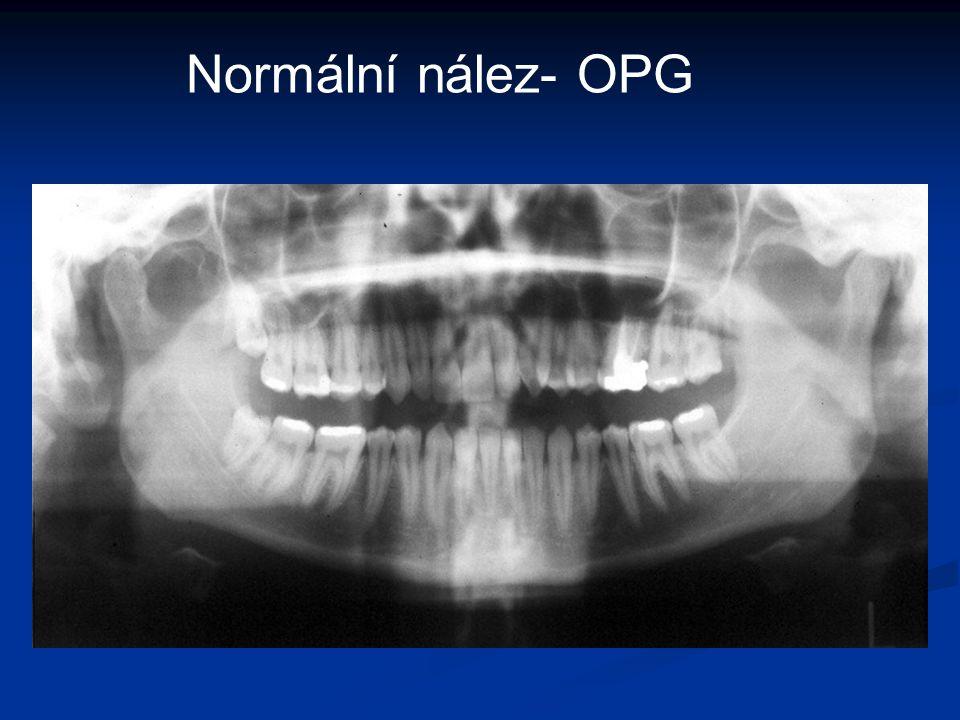 Normální nález- OPG