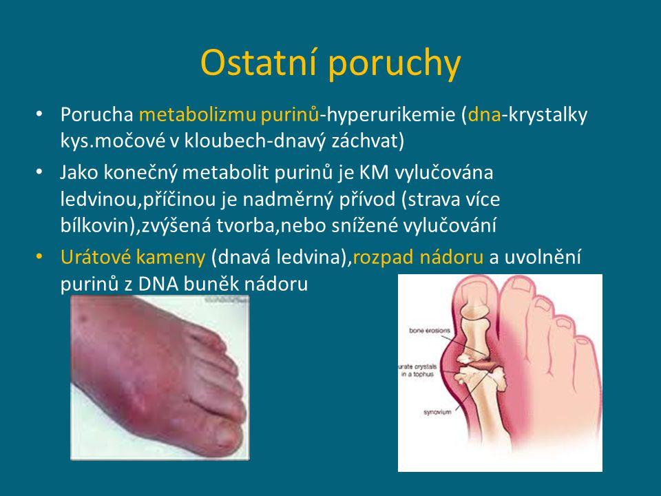 Ostatní poruchy Porucha metabolizmu purinů-hyperurikemie (dna-krystalky kys.močové v kloubech-dnavý záchvat)