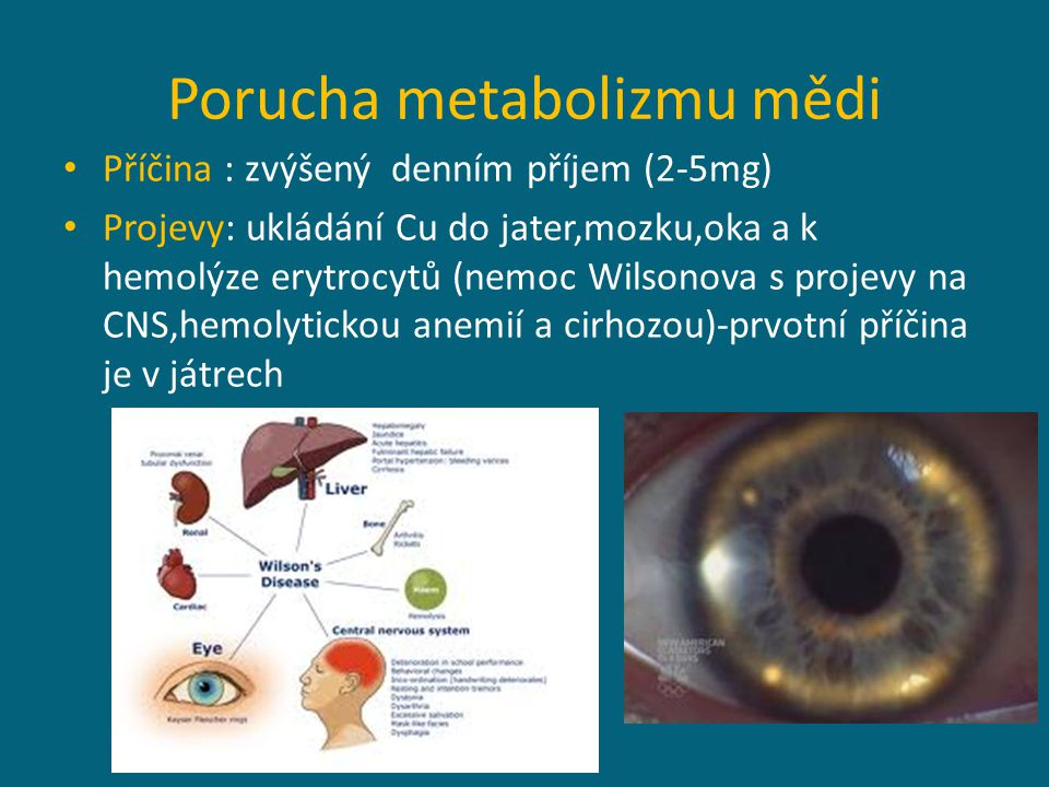 Porucha metabolizmu mědi