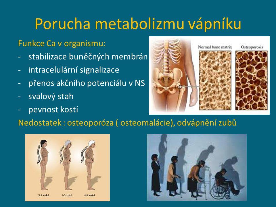 Porucha metabolizmu vápníku