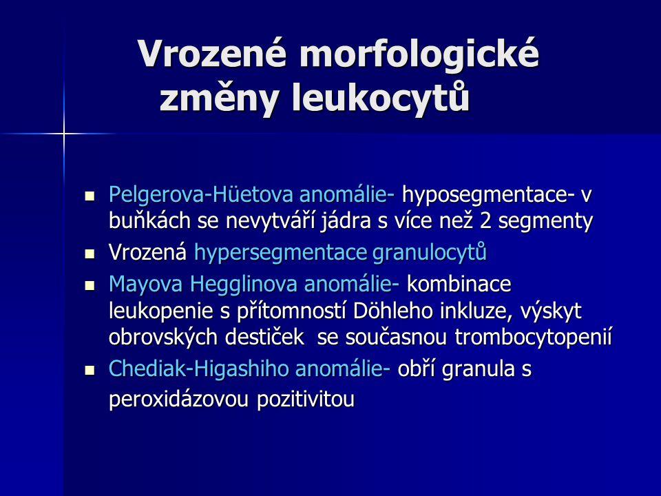 Vrozené morfologické změny leukocytů