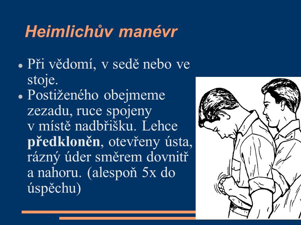 Heimlichův manévr Při vědomí, v sedě nebo ve stoje.
