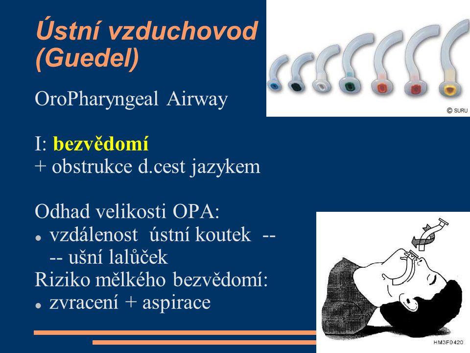Ústní vzduchovod (Guedel)